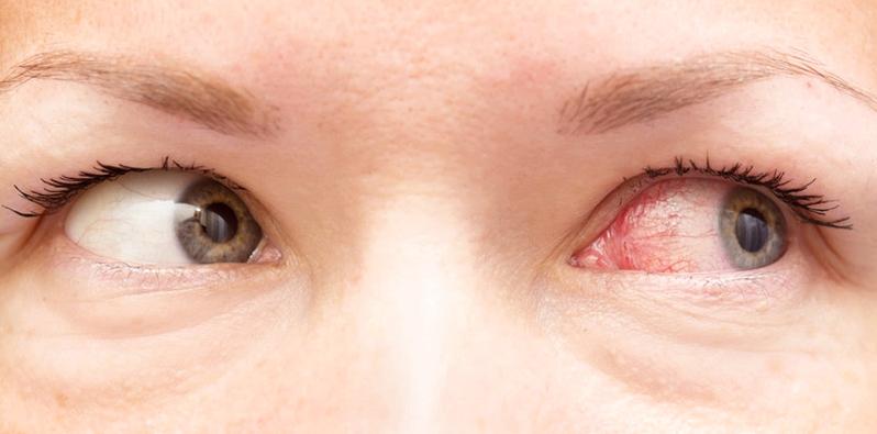 Hausstauballergiker leiden besonders nachts und morgens unter Allergie-Symptomen, wie z.B. gerötete, juckende Augen