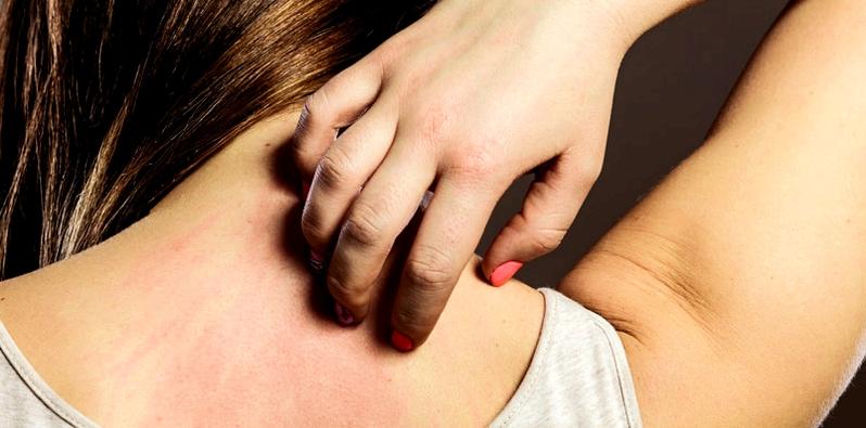 Juckreiz ist eine der Nebenwirkungen, die während der Einnahme von Ambroxol auftreten kann