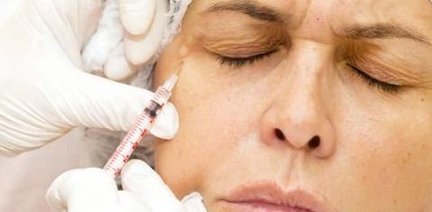 Botox gegen Augenlidzucken