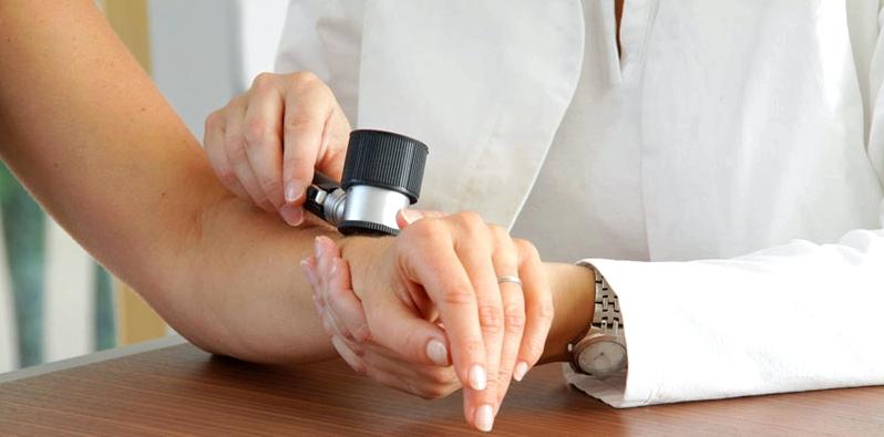 Hautarzt untersucht betroffene Hautstellen