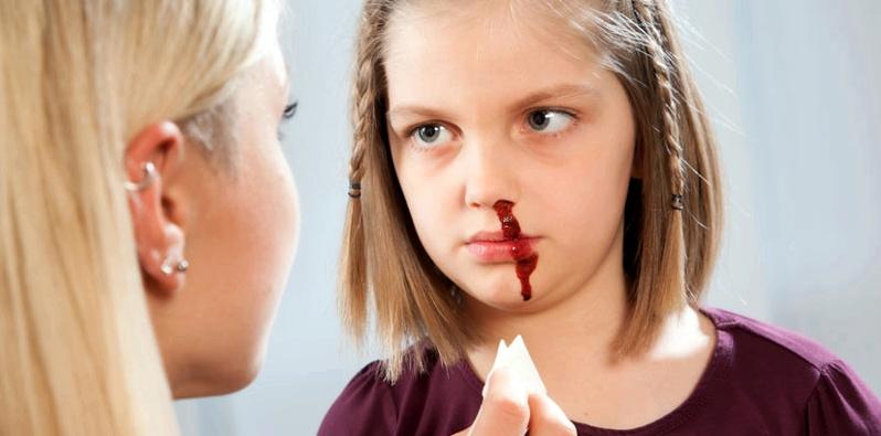 Eine blutende Nase beim Kind wird versorgt