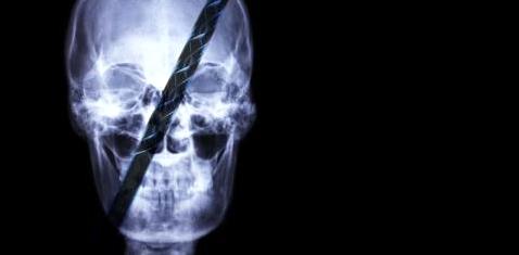 Ein Röntgenbild von einem Schädel mit einer Eisenstange