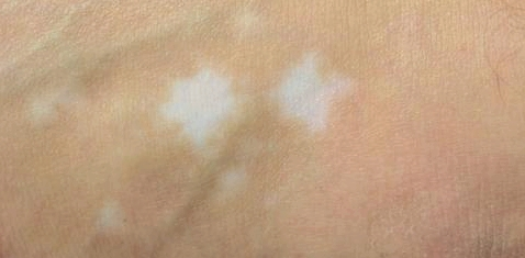 Bei der Autoimmunerkrankung Vitiligo hat die Haut stellenweise zu wenig Pigmente, statt dunkler entstehen helle Flecken