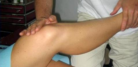 Kreuzbandriss: Arzt prüft Beweglichkeit des Kniegelenks