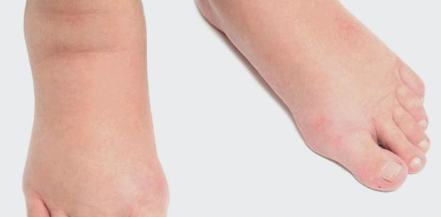 Ödeme bilden sich häufig an den Knöcheln und Füßen