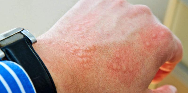 Nesselsucht ausgelöst durch Paracetamol