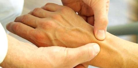 Implantat heilt Gelenkschmerzen