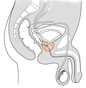Prostata unterhalb der Harnblase