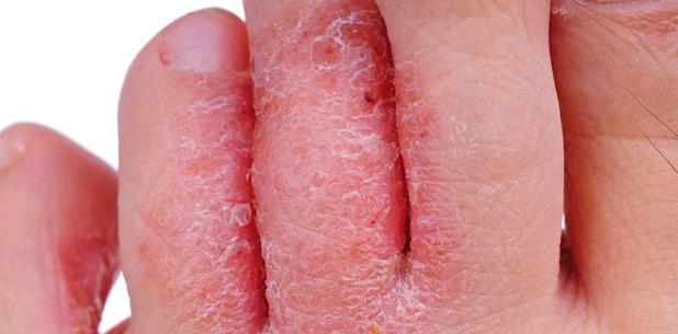 Fußpilz kann Wundrose verursachen