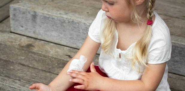 Kind mit Röschenflechte trägt Salbe zur Juckreiz Behandlung auf