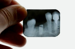 Röntgen hilft dem Zahnarzt bei der Diagnose von Zahnschmerzen