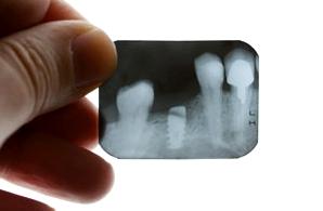 Röntgenaufnahme der Zähne hilft dem Zahnarzt bei der Diagnose von Zahnschmerzen