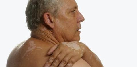 Bei einzelnen weißen Flecken auf der Haut, kann es sich um Vitiligo handeln