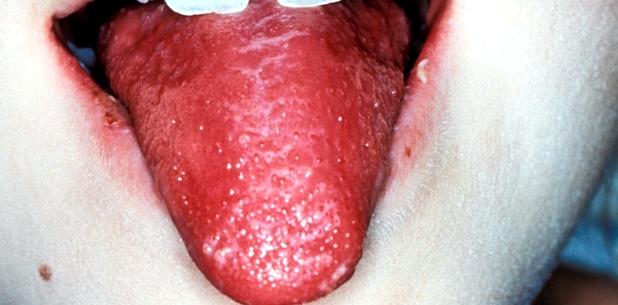 Die sogenannte Himbeerzunge ist ein typisches Symptom für Scharlach