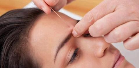 Bei Mundtrockenheit hilft Akupunktur
