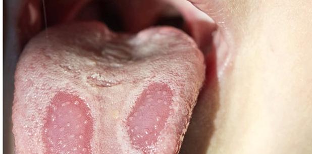 Gelblicher Zungenbelag