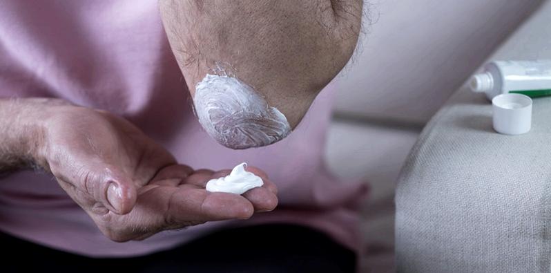 Der Wirkstoff Dexpanthenol ist als Salbe oder Creme besonders gut auf trockende und juckende Hautstellen aufzutragen