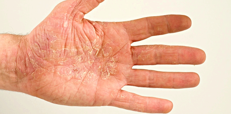 Trockene Haut durch Neurodermitis