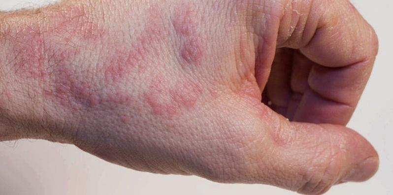 Hautausschlag auf Handrücken