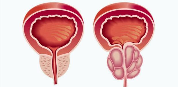vergrößerte Prostata