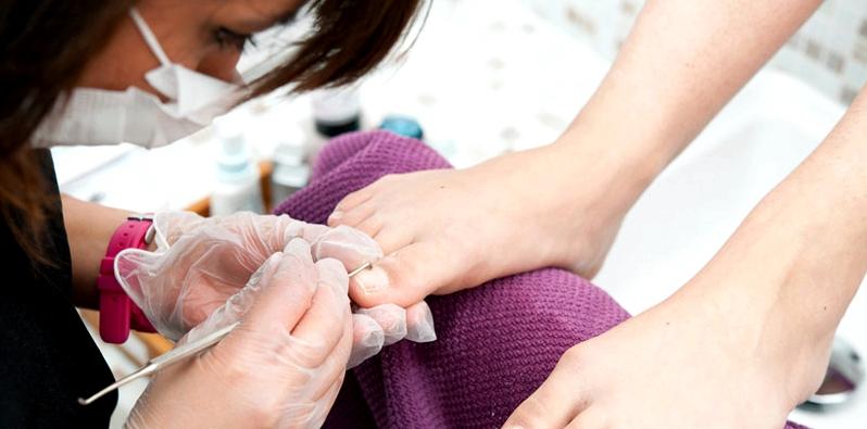 Ärztin entnimmt Nagelprobe für Nagelpilz Diagnose