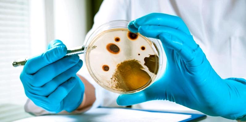 Für eine Nagelpilz-Diagnose wird eine Pilzkultur angelegt