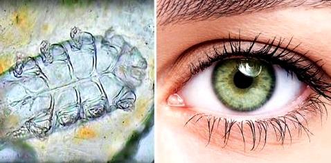 Augenmilben