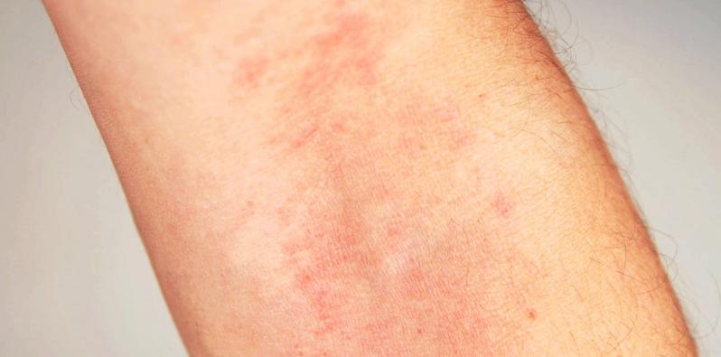 Obwohl Dexpanthenol sehr nebenwirkungsarm ist, können unerwünschte Nebenwirkungen z.B. in Form von Hautausschlag auftreten