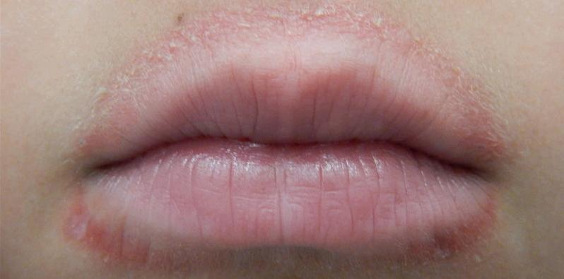 Leck-Ekzem, Schnuller-Ekzem oder periorale Dermatitis beim Kind: Pickel um den Mund
