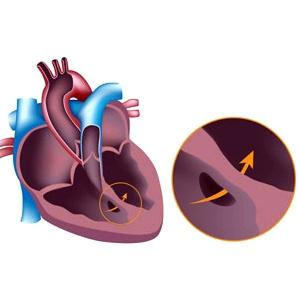 Ventrikelseptumdefekt: Loch in der Herzscheidewand