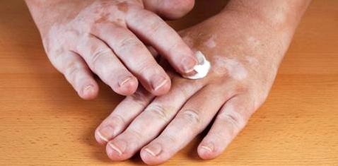 Antientzündliche Cremes können bei Vitiligo zur Repigmentierung führen