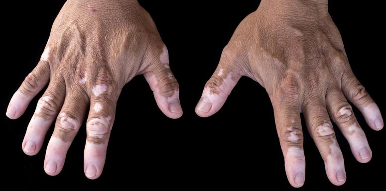 Bei Vitiligo handelt es sich um eine Pigmentstörung der Haut